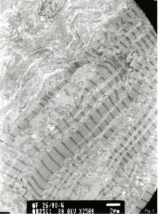 Studies of heart ultrastructure in various diseass by prof A. Fidziańska-Dolot: laminopathy - 26/08